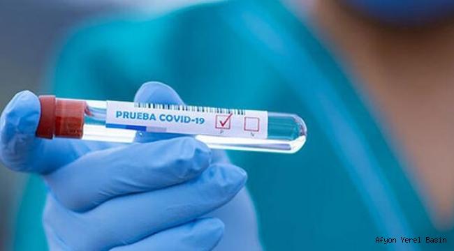 Bilim adamları resmen açıkladı koronavirüsten ölenlerde görüldü..!!!